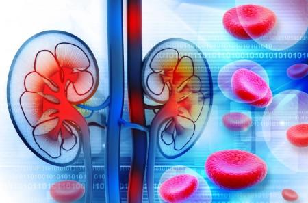 慢性腎臓病(CKD)