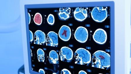 激しい頭痛は危険なサイン